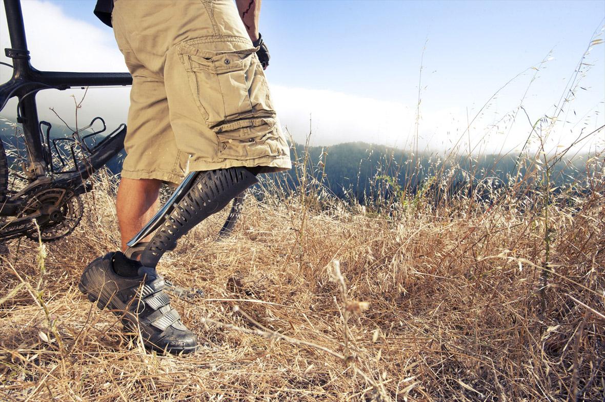 Artificial Limbs by Scott Stummit (9)