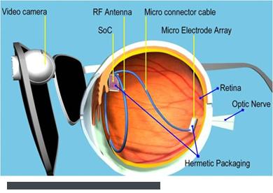Argus II_eye_implant
