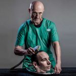 The first human head transplant was delayed