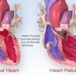 Medical breakthrough: Scientists have succeeded in reversing advanced heart failure