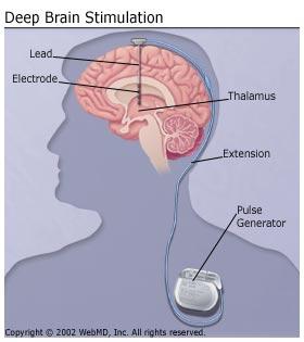 Parkinsons_Disease_Deep_Brain_Stimulation